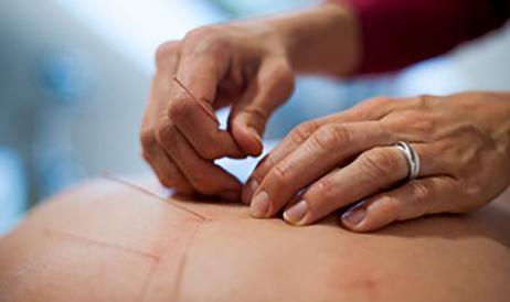 Akupunktur wende ich als TCM Therapieform an, um die körpereigenen Heilungskräfte zu aktivieren und um den Organismus wieder in Einklang zu bringen.